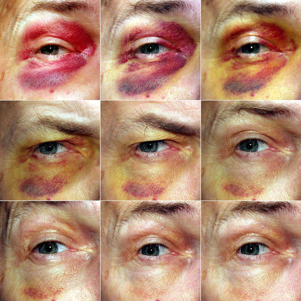 7 Gezondheidsproblemen die blauwe plekken kunnen veroorzaken en wat je eraan kunt doen blauw oog