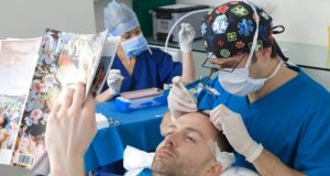 Veel gestelde vragen over haartransplantatie